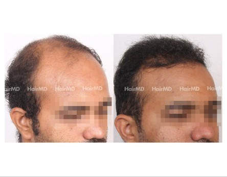 150Hair-Transplant-male-before-after-8000-hair-grafts-8