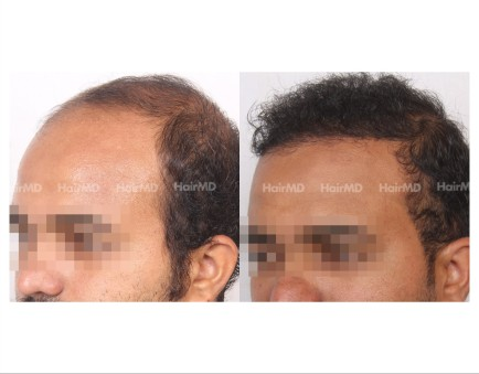 151Hair-Transplant-male-before-after-8000-hair-grafts-6