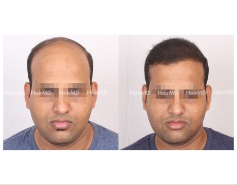 152Hair-Transplant-male-before-after-8000-hair-grafts-3