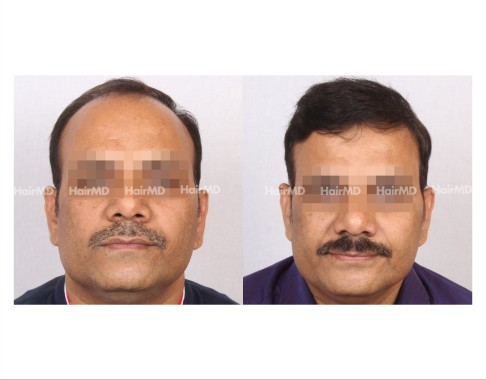 153Hair-Transplant-male-before-after-8000-hair-grafts