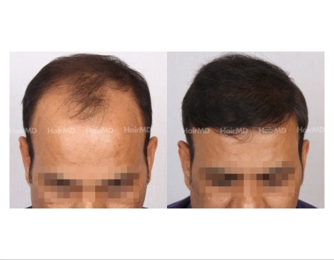 154Hair-Transplant-male-before-after-8000-hair-grafts-1