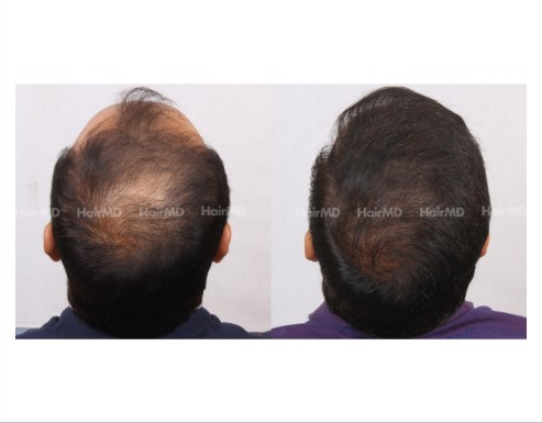 155Hair-Transplant-male-before-after-8000-hair-grafts-2