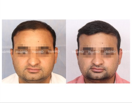 156Hair-Transplant-male-before-after-7000-hair-grafts-26
