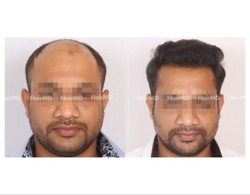 157Hair-Transplant-male-before-after-7000-hair-grafts-22