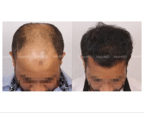 158Hair-Transplant-male-before-after-7000-hair-grafts-24