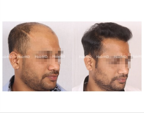 159Hair-Transplant-male-before-after-7000-hair-grafts-23