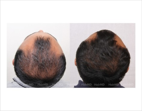 15Hair-Loss-male-before-and-after-result-14