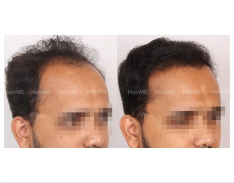 15Hair-Transplant-male-before-after-3000-hair-grafts-29
