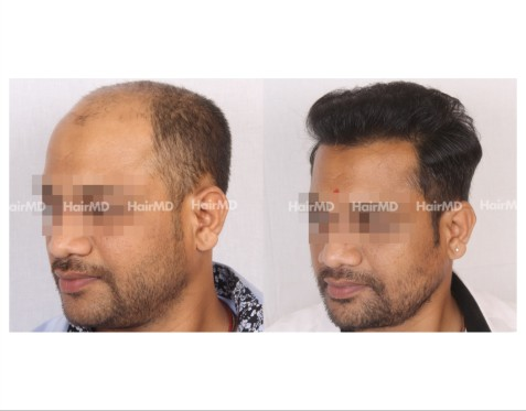 160Hair-Transplant-male-before-after-7000-hair-grafts-25