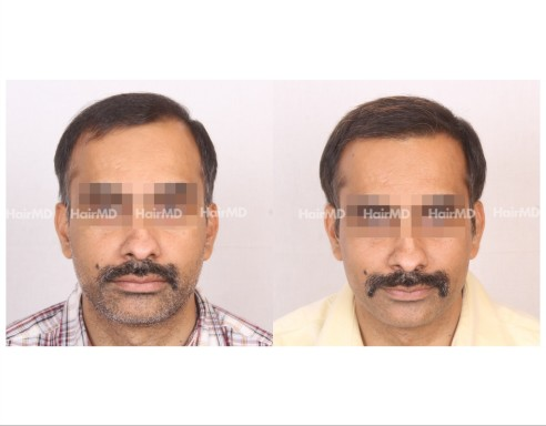 161Hair-Transplant-male-before-after-7000-hair-grafts-17