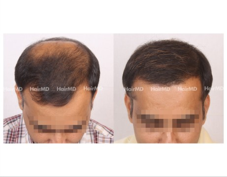 162Hair-Transplant-male-before-after-7000-hair-grafts-18