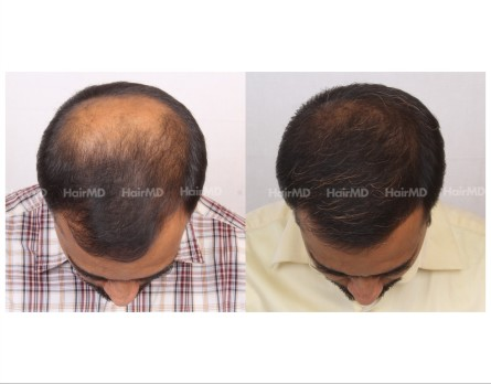 163Hair-Transplant-male-before-after-7000-hair-grafts-19