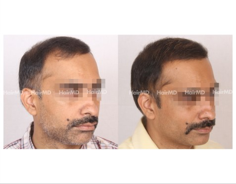 164Hair-Transplant-male-before-after-7000-hair-grafts-20