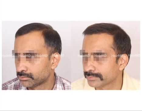 165Hair-Transplant-male-before-after-7000-hair-grafts-21