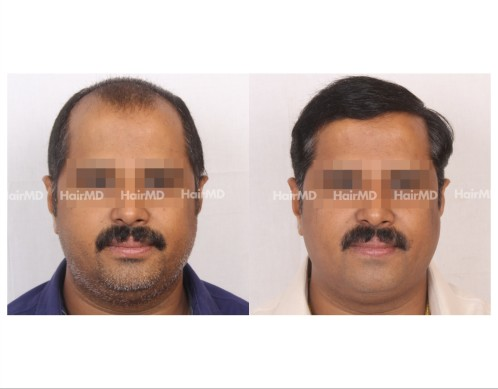 166Hair-Transplant-male-before-after-7000-hair-grafts-12