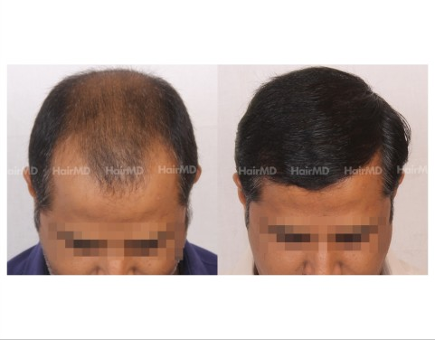167Hair-Transplant-male-before-after-7000-hair-grafts-15
