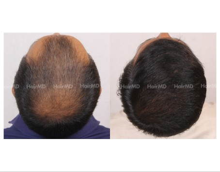 168Hair-Transplant-male-before-after-7000-hair-grafts-13