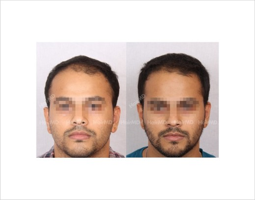 16Hair-Loss-male-before-and-after-result-15
