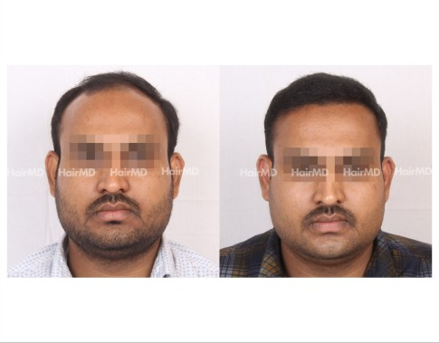 16Hair-Transplant-male-before-after-6000-hair-grafts-48