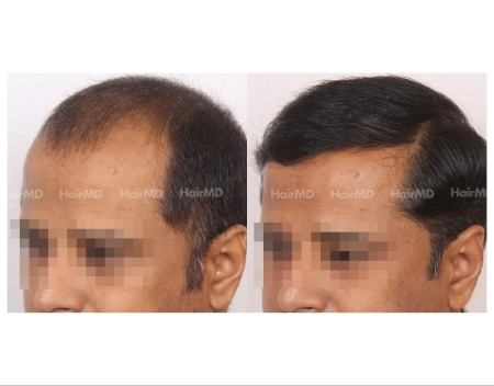 170Hair-Transplant-male-before-after-7000-hair-grafts-16