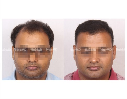 171Hair-Transplant-male-before-after-7000-hair-grafts-11