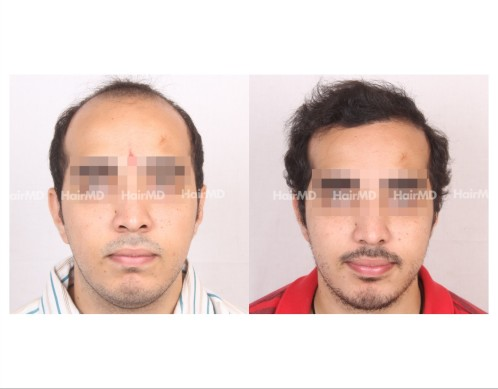 172Hair-Transplant-male-before-after-7000-hair-grafts-7-1