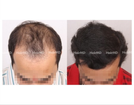 173Hair-Transplant-male-before-after-7000-hair-grafts-8