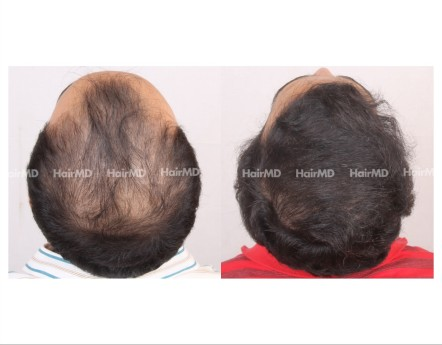 174Hair-Transplant-male-before-after-7000-hair-grafts-9