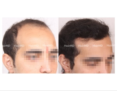 175Hair-Transplant-male-before-after-7000-hair-grafts-7
