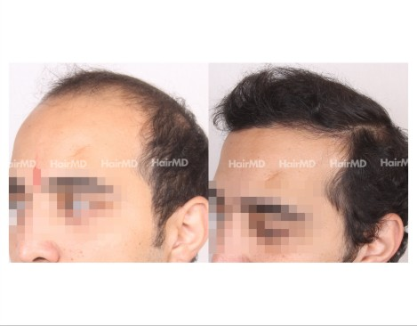 176Hair-Transplant-male-before-after-7000-hair-grafts-10