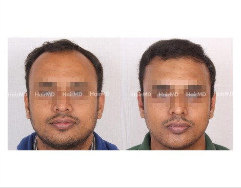 178Hair-Transplant-male-before-after-7000-hair-grafts