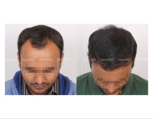 179Hair-Transplant-male-before-after-7000-hair-grafts-1