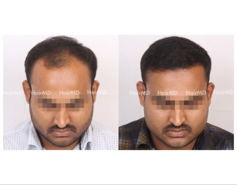 17Hair-Transplant-male-before-after-6000-hair-grafts-49