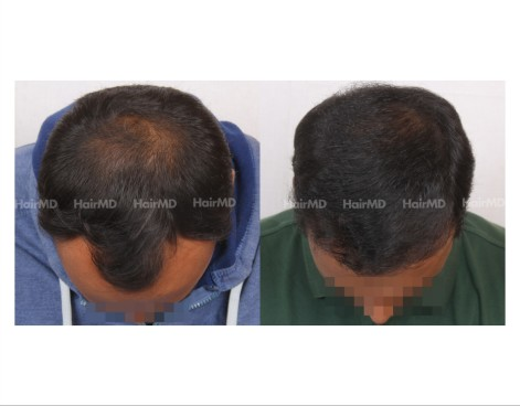 180Hair-Transplant-male-before-after-7000-hair-grafts-2