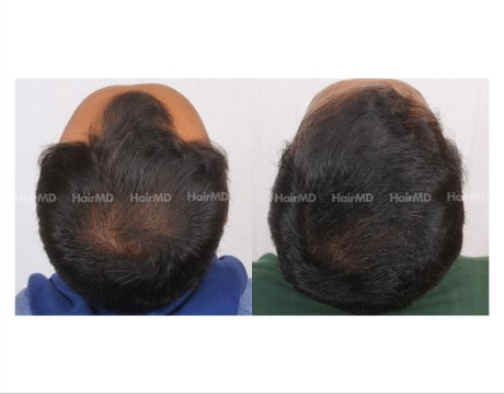 181Hair-Transplant-male-before-after-7000-hair-grafts-5
