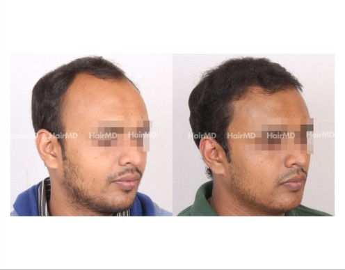 182Hair-Transplant-male-before-after-7000-hair-grafts-4