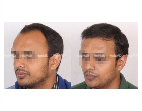 183Hair-Transplant-male-before-after-7000-hair-grafts-3