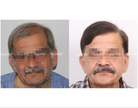 184Hair-Transplant-male-before-after-7000-hair-graft