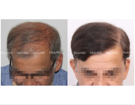 185Hair-Transplant-male-before-after-7000-hair-graft-1