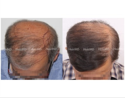 186Hair-Transplant-male-before-after-7000-hair-graft-2
