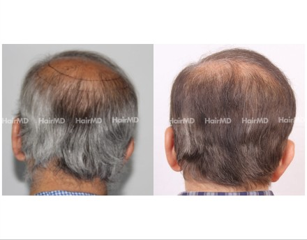 187Hair-Transplant-male-before-after-7000-hair-graft-3