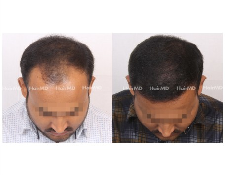 18Hair-Transplant-male-before-after-6000-hair-grafts-50