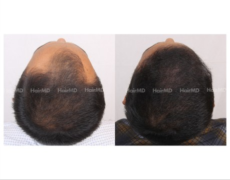 19Hair-Transplant-male-before-after-6000-hair-grafts-51
