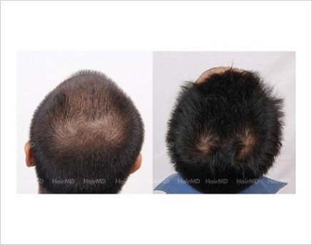 1Hair-Loss-male-before-and-after-result-35