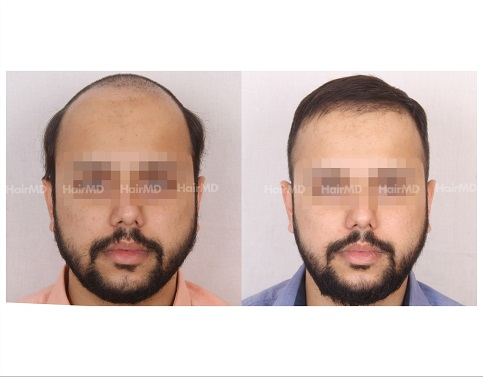 1Hair-Transplant-male-before-after-4000-hair-grafts-28