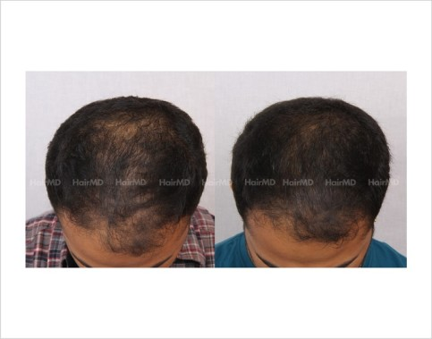 20Hair-Loss-male-before-and-after-result-19