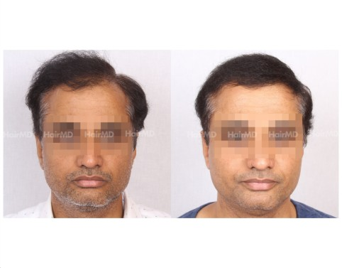 20Hair-Transplant-male-before-after-5000-hair-grafts-25