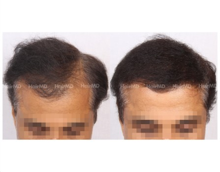 21Hair-Transplant-male-before-after-5000-hair-grafts-26