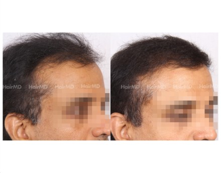 22Hair-Transplant-male-before-after-5000-hair-grafts-27