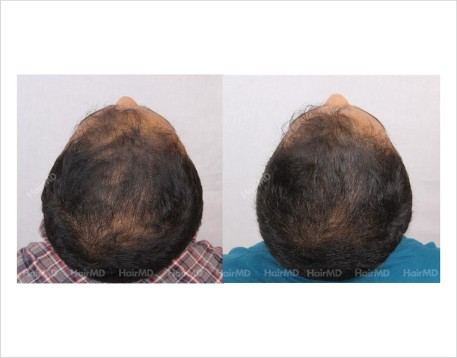 23Hair-Loss-male-before-and-after-result-22